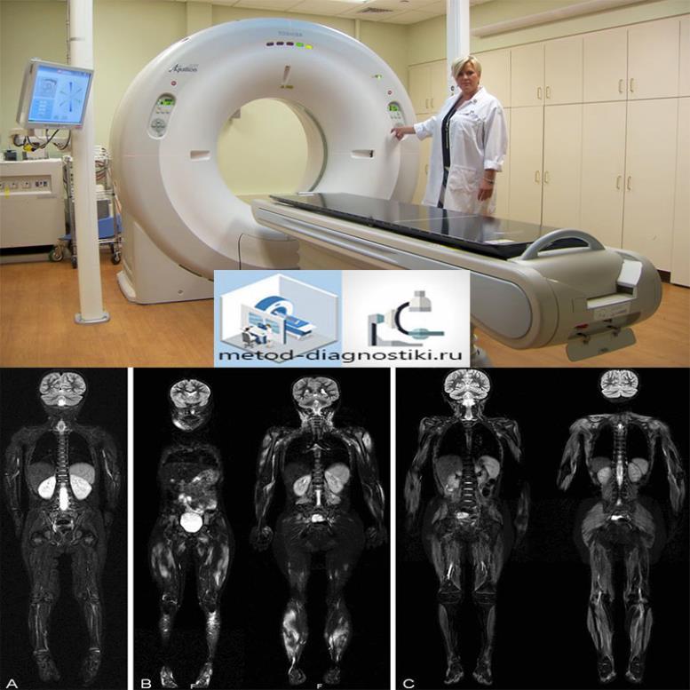 томограф и снимок тела