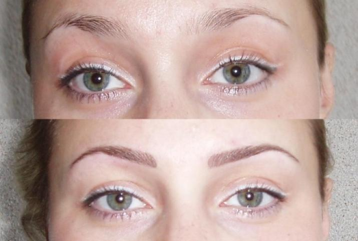 До и после: результат процедуры