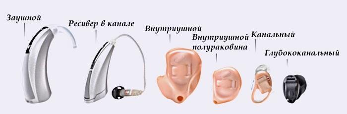 Виды слуховых устройств для пожилых людей