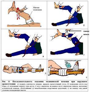 наложения ленточного кровоостанавливающего жгута